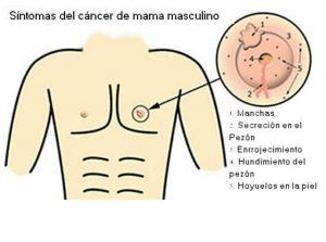 cancer de mama nivel 6